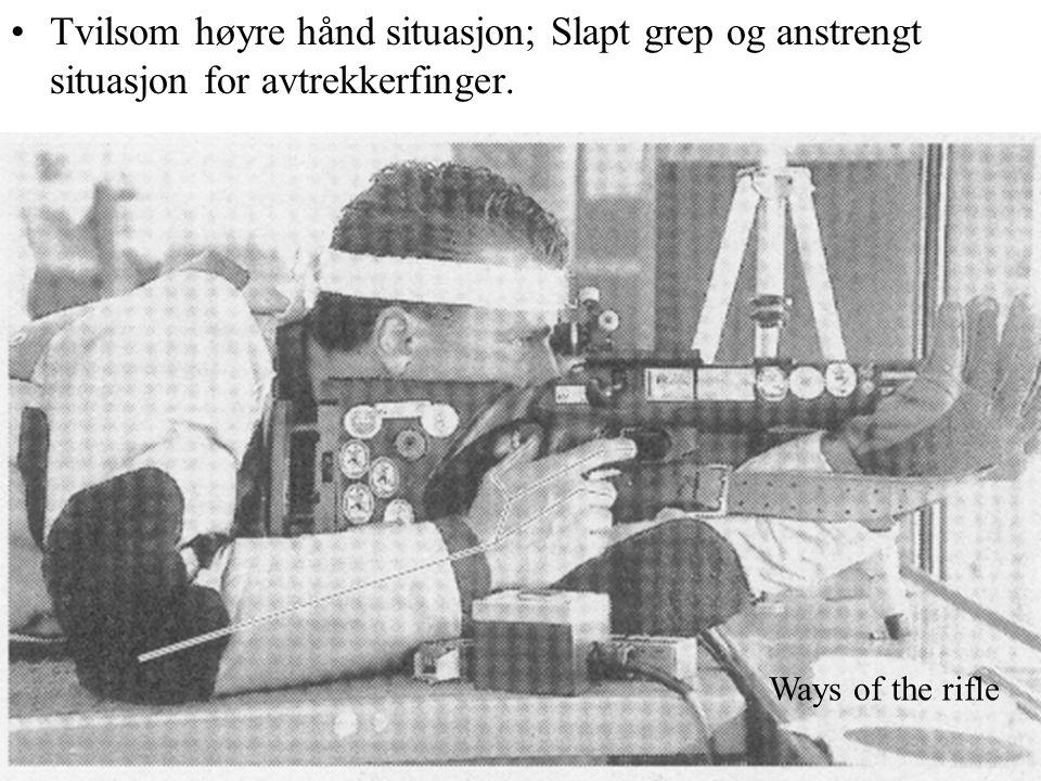 Tvilsom høyre hånd situasjon; Slapt grep og anstrengt situasjon for avtrekkerfinger.