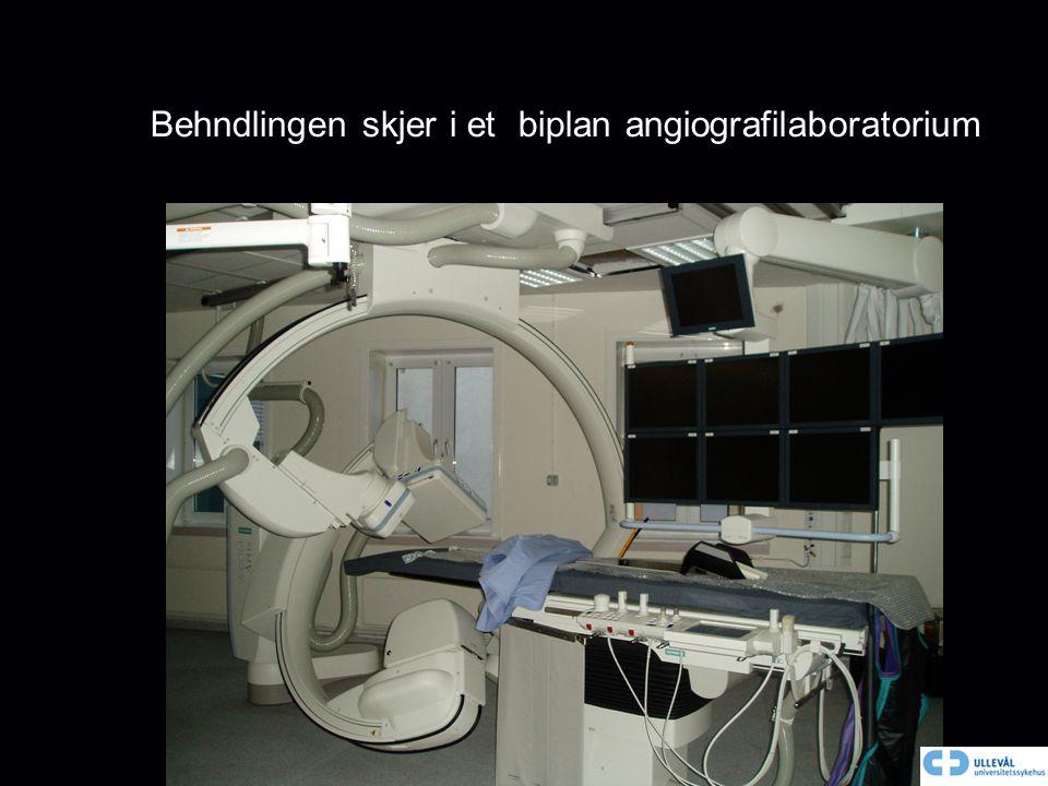 Behndlingen skjer i et biplan angiografilaboratorium