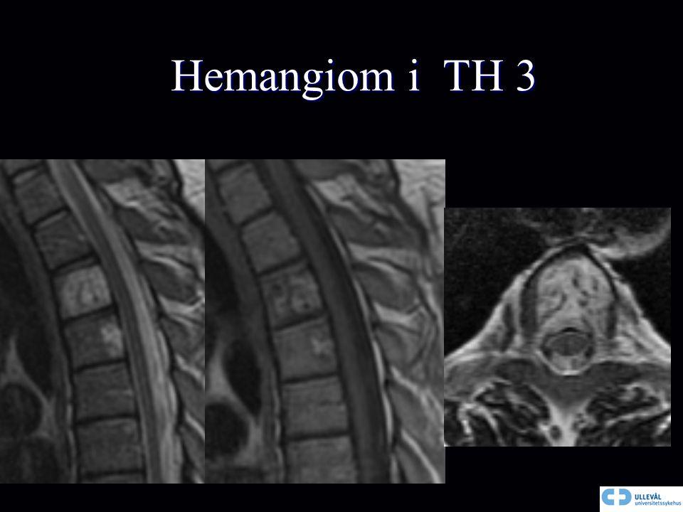 Hemangiom i TH 3 Hemangiom i TH 3