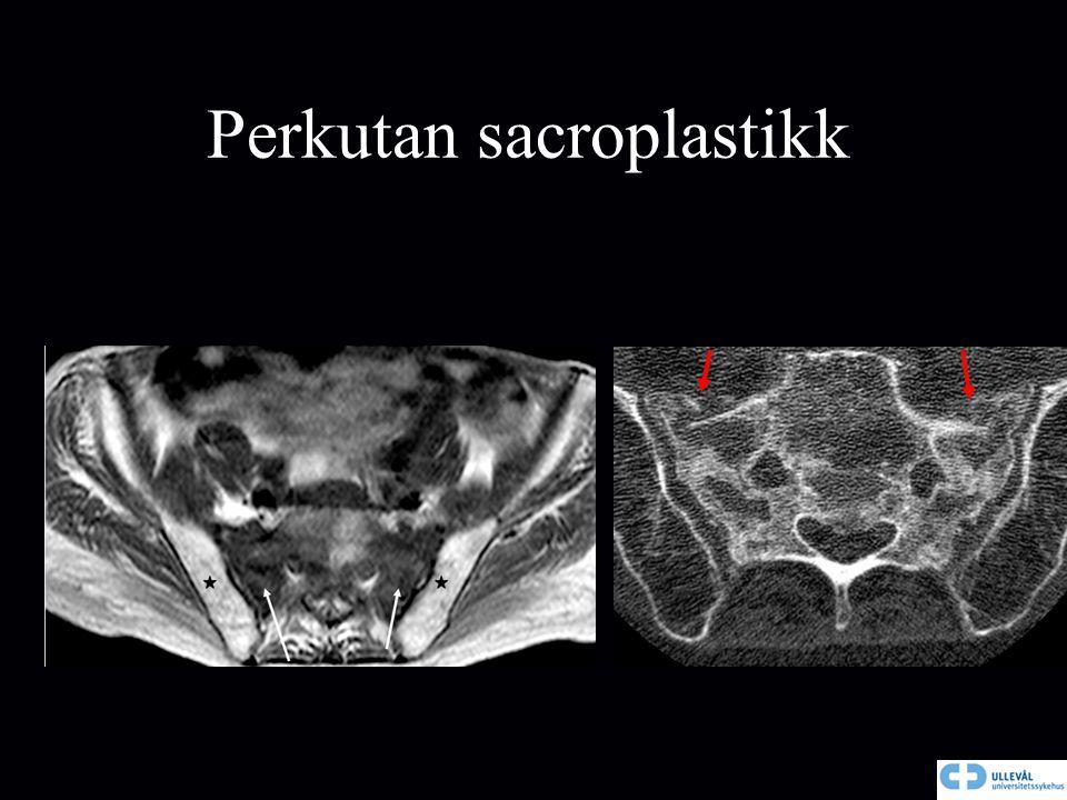 Perkutan sacroplastikk