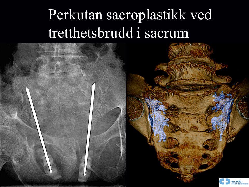 Perkutan sacroplastikk ved tretthetsbrudd i sacrum