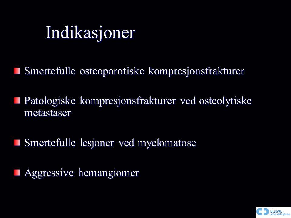 Indikasjoner Smertefulle osteoporotiske kompresjonsfrakturer Patologiske kompresjonsfrakturer ved osteolytiske metastaser Smertefulle lesjoner ved mye