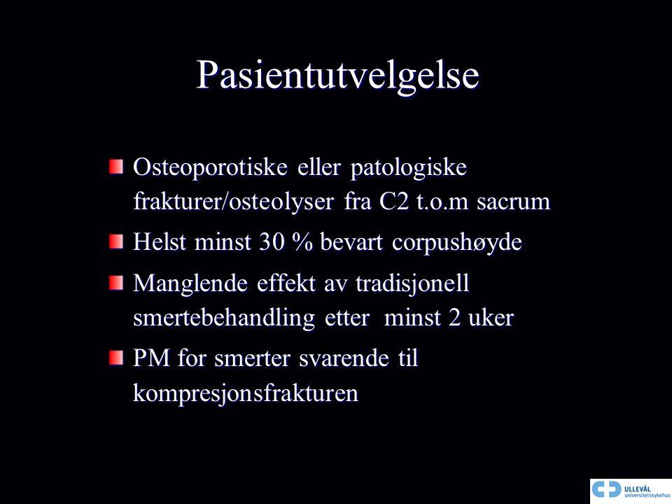 Pasientutvelgelse Osteoporotiske eller patologiske frakturer/osteolyser fra C2 t.o.m sacrum Helst minst 30 % bevart corpushøyde Manglende effekt av tr