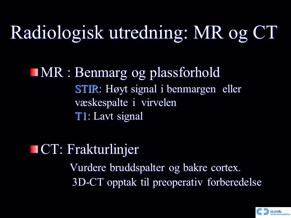 Radiologisk utredning: MR og CT MR : Benmarg og plassforhold STIR: Høyt signal i benmargen eller STIR: Høyt signal i benmargen eller væskespalte i vir