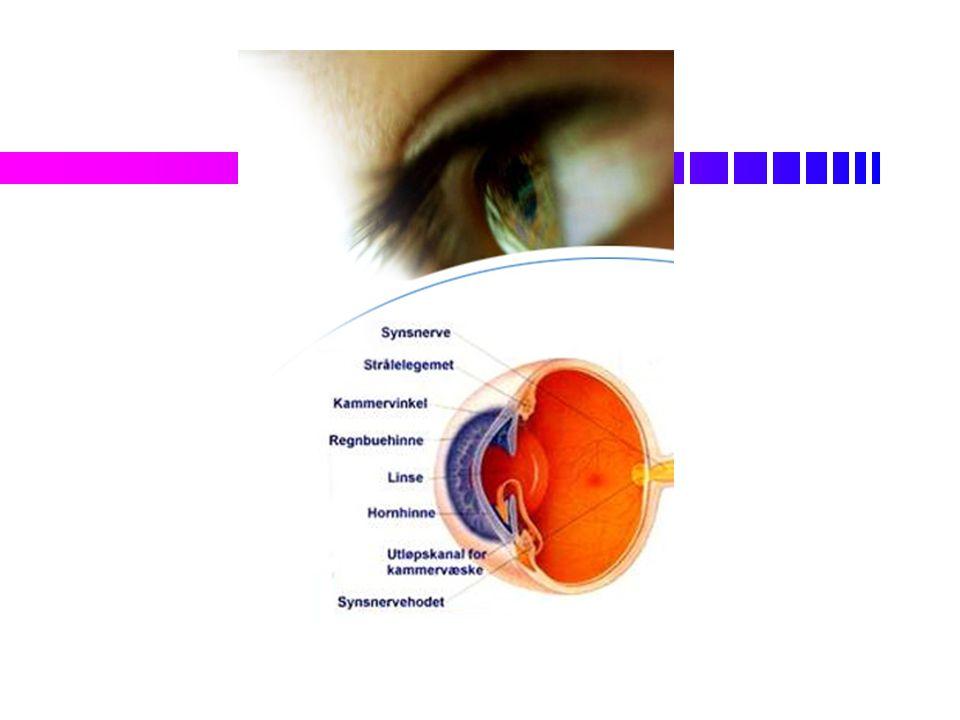 Synssansen Mennesket har flere sanserMennesket har flere sanser Lysstrålene fra gjenstanden vi ser på samles på netthinnen bak øyetLysstrålene fra gjenstanden vi ser på samles på netthinnen bak øyet Hornhinnen er gjennomsiktig og har jevn overflateHornhinnen er gjennomsiktig og har jevn overflate Linsen i øyet endres slik at vi ser skarptLinsen i øyet endres slik at vi ser skarpt Lysstrålene skal samles på øyes netthinneLysstrålene skal samles på øyes netthinne Linsen blir stivere med alderenLinsen blir stivere med alderen