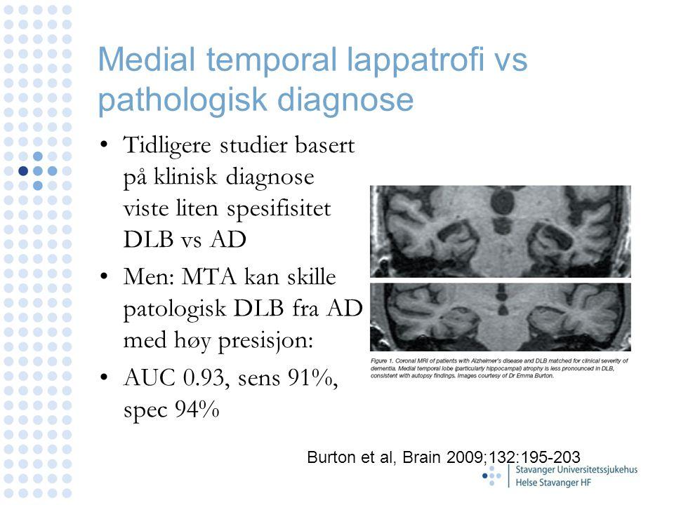 Medial temporal lappatrofi vs pathologisk diagnose Tidligere studier basert på klinisk diagnose viste liten spesifisitet DLB vs AD Men: MTA kan skille