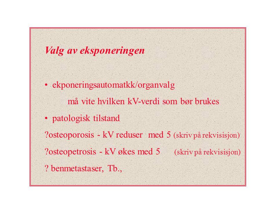Valg av eksponeringen ekponeringsautomatkk/organvalg må vite hvilken kV-verdi som bør brukes patologisk tilstand ?osteoporosis - kV reduser med 5 (skr