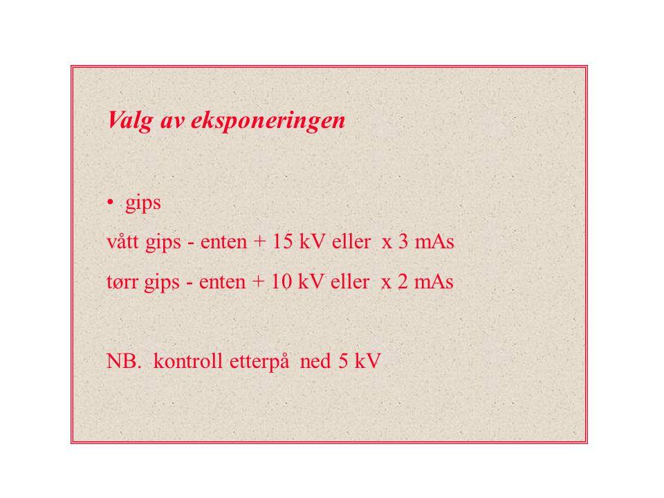 Valg av eksponeringen gips vått gips - enten + 15 kV eller x 3 mAs tørr gips - enten + 10 kV eller x 2 mAs NB. kontroll etterpå ned 5 kV