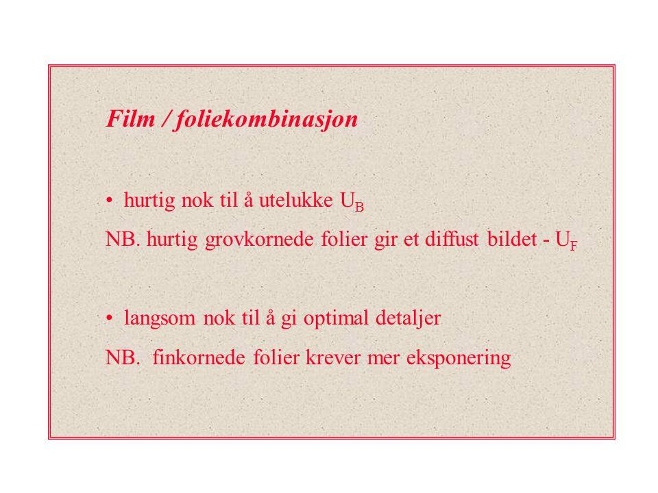 Film / foliekombinasjon hurtig nok til å utelukke U B NB. hurtig grovkornede folier gir et diffust bildet - U F langsom nok til å gi optimal detaljer