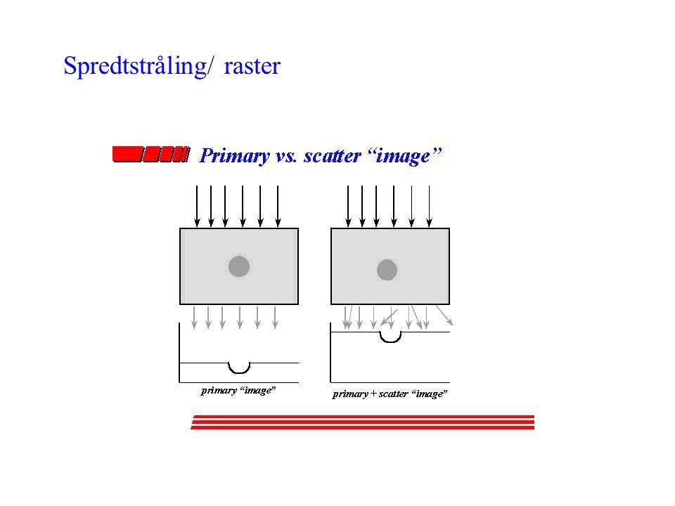 Spredtstråling/ raster