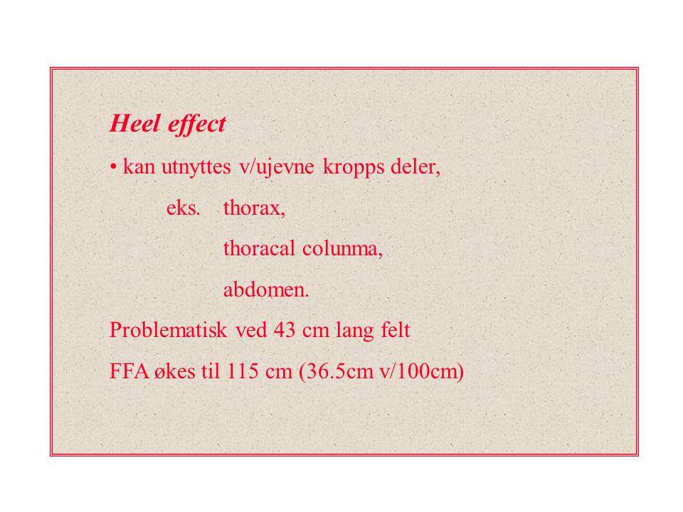 Heel effect kan utnyttes v/ujevne kropps deler, eks. thorax, thoracal colunma, abdomen. Problematisk ved 43 cm lang felt FFA økes til 115 cm (36.5cm v