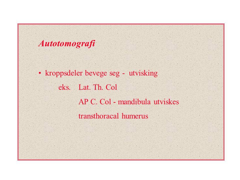 Autotomografi kroppsdeler bevege seg - utvisking eks. Lat. Th. Col AP C. Col - mandibula utviskes transthoracal humerus