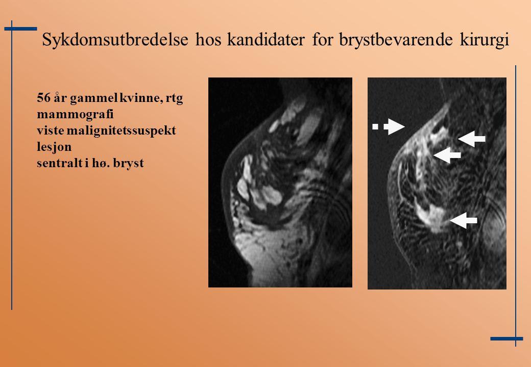 Sykdomsutbredelse hos kandidater for brystbevarende kirurgi 56 år gammel kvinne, rtg mammografi viste malignitetssuspekt lesjon sentralt i hø. bryst