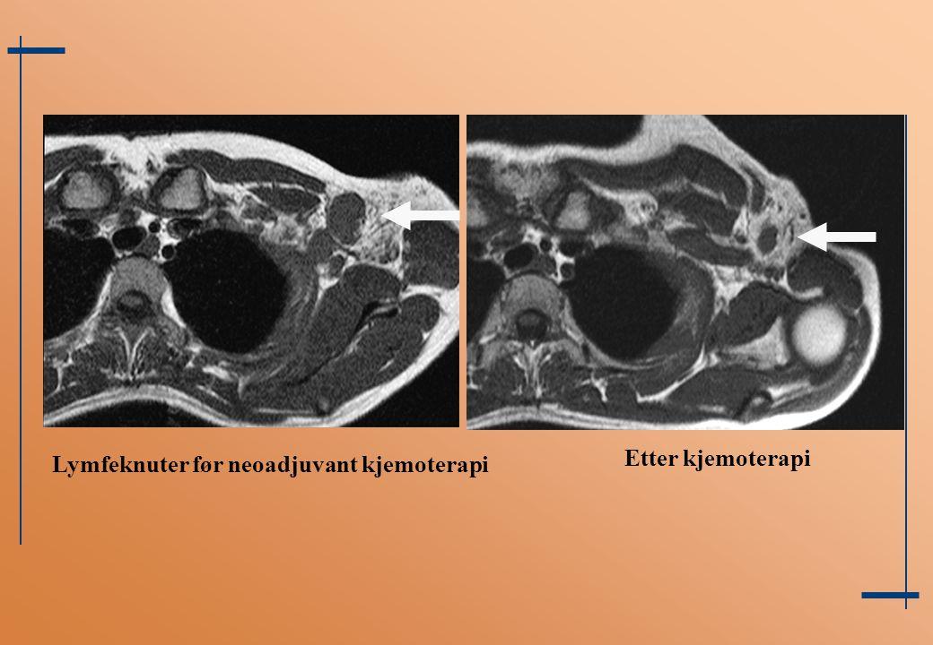 Lymfeknuter før neoadjuvant kjemoterapi Etter kjemoterapi