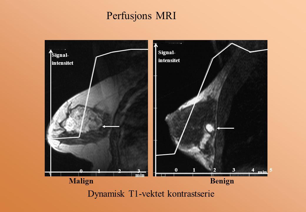 Signal- intensitet min 0 1 2 3 Signal- intensitet 0 1 2 3 4 5 min Perfusjons MRI Dynamisk T1-vektet kontrastserie MalignBenign