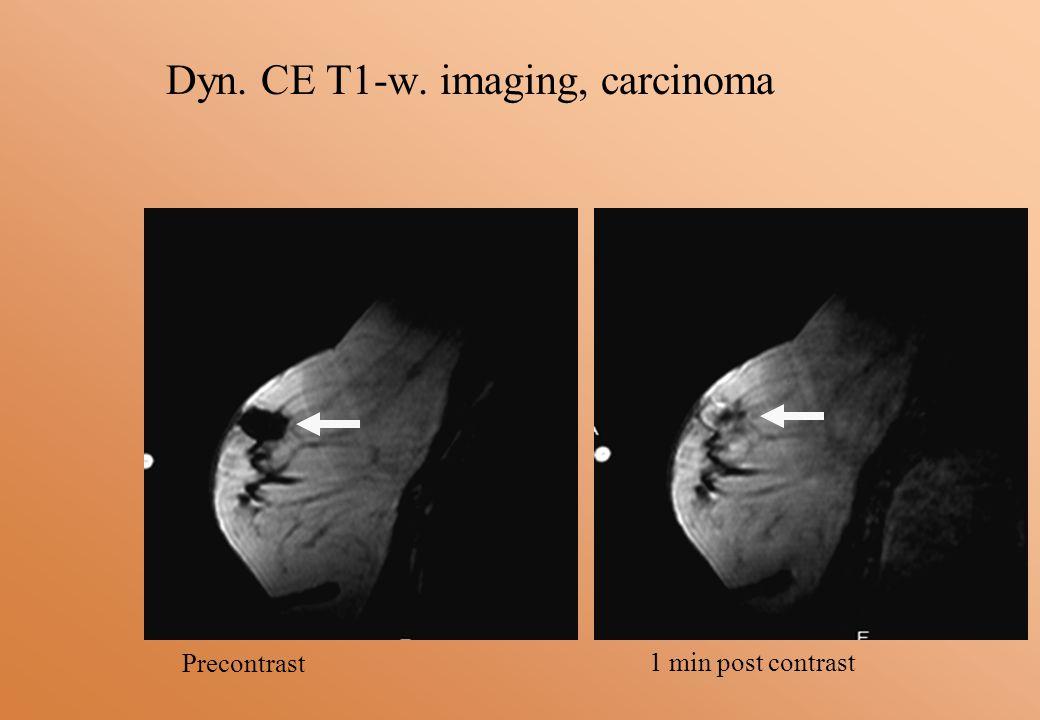 Dyn. CE T1-w. imaging, carcinoma Precontrast 1 min post contrast