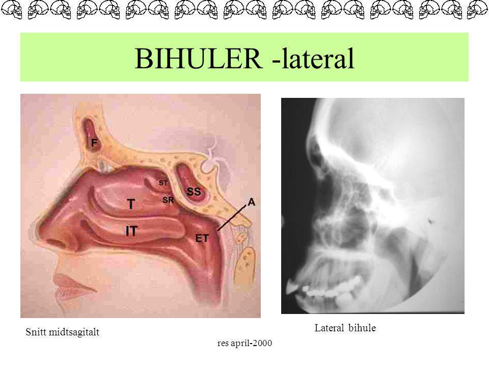 res april-2000 BIHULER -lateral Snitt midtsagitalt Lateral bihule