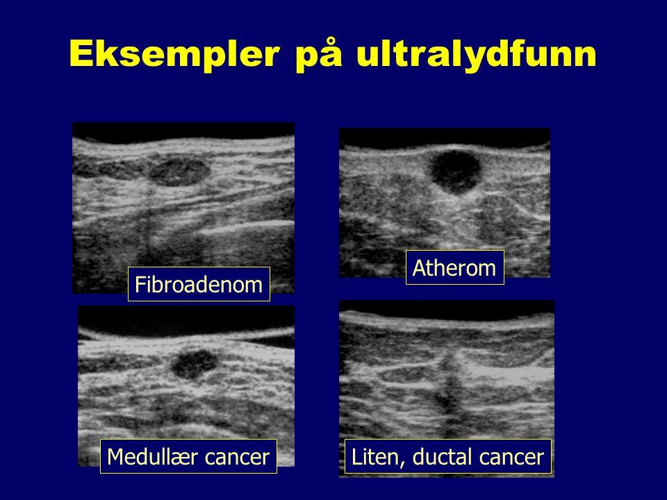 Eksempler på ultralydfunn Liten, ductal cancer Atherom Medullær cancer Fibroadenom