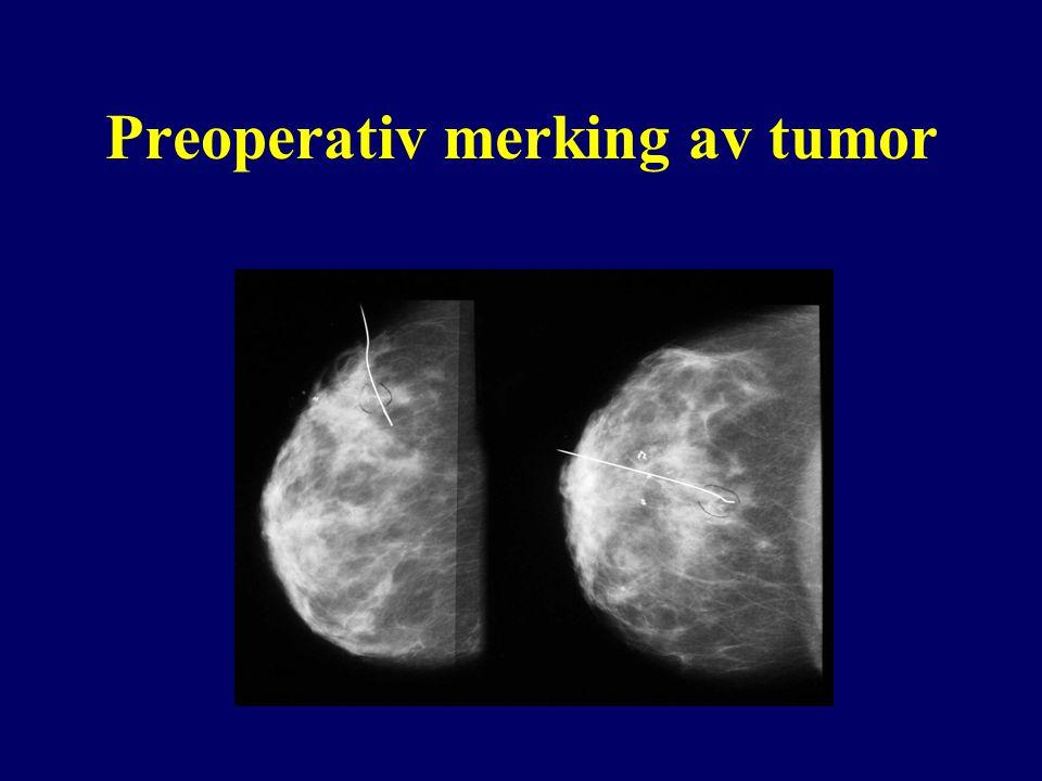 Preoperativ merking av tumor