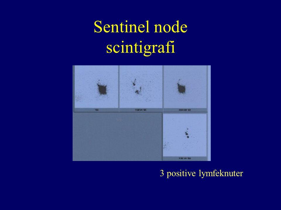 Sentinel node scintigrafi 3 positive lymfeknuter