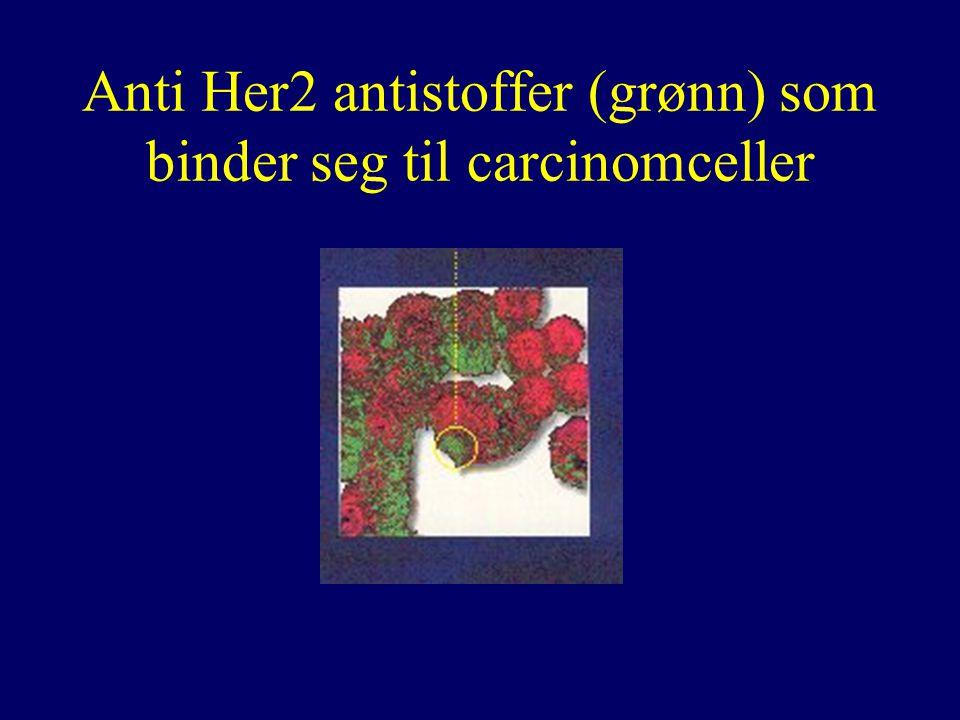 Anti Her2 antistoffer (grønn) som binder seg til carcinomceller