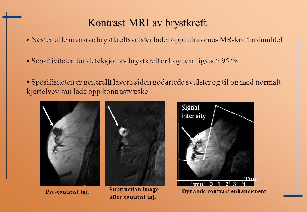 Kontrast MRI av brystkreft Nesten alle invasive brystkreftsvulster lader opp intravenøs MR-kontrastmiddel Sensitiviteten for deteksjon av brystkreft e
