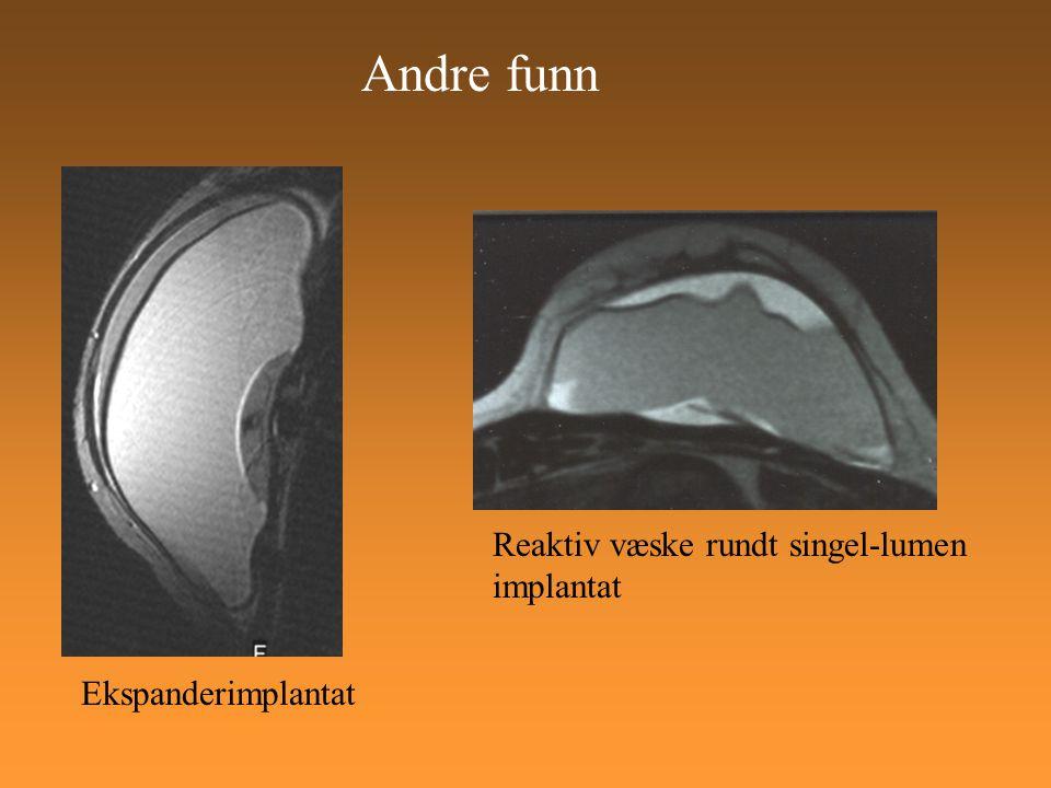 Andre funn Ekspanderimplantat Reaktiv væske rundt singel-lumen implantat