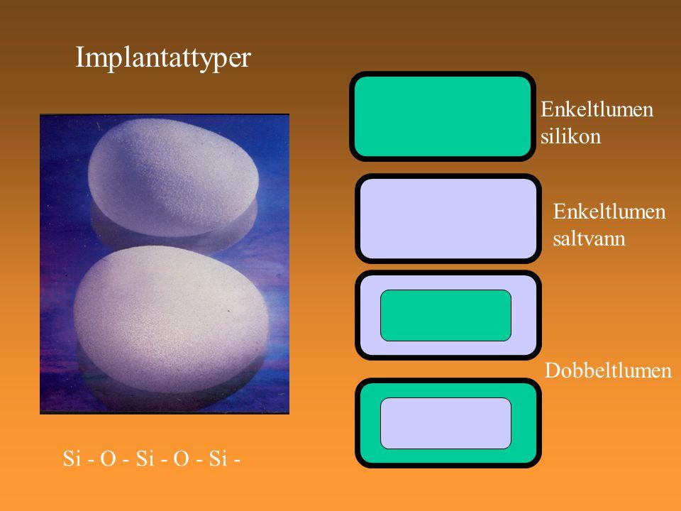 Implantattyper Si - O - Si - O - Si - Enkeltlumen silikon Enkeltlumen saltvann Dobbeltlumen
