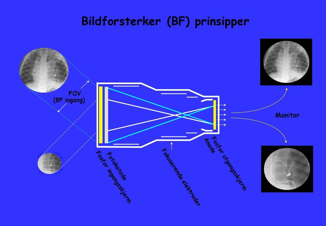 Bildforsterker (BF) prinsipper Monitor FOV (BF ingang) Fosfor ingangsskjerm Fotokatode Fokuserende elektroder Fosfor utgangsskjerm Anode