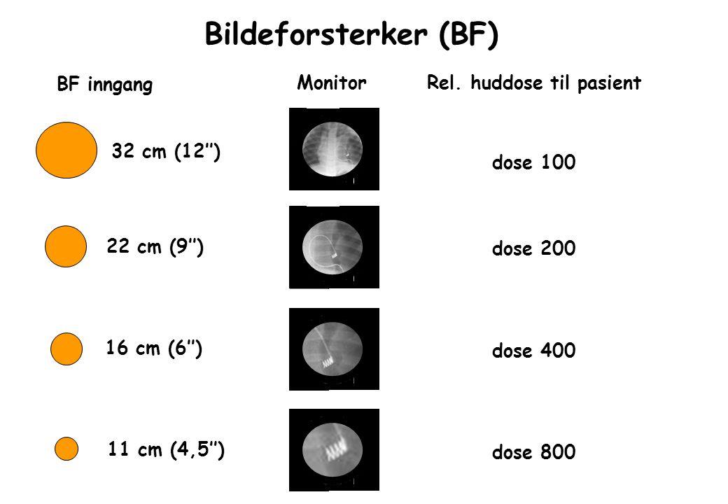 Bildeforsterker (BF) BF inngang Rel. huddose til pasient 32 cm (12'') 22 cm (9'') 16 cm (6'') 11 cm (4,5'') dose 100 dose 200 dose 400 dose 800 Monito