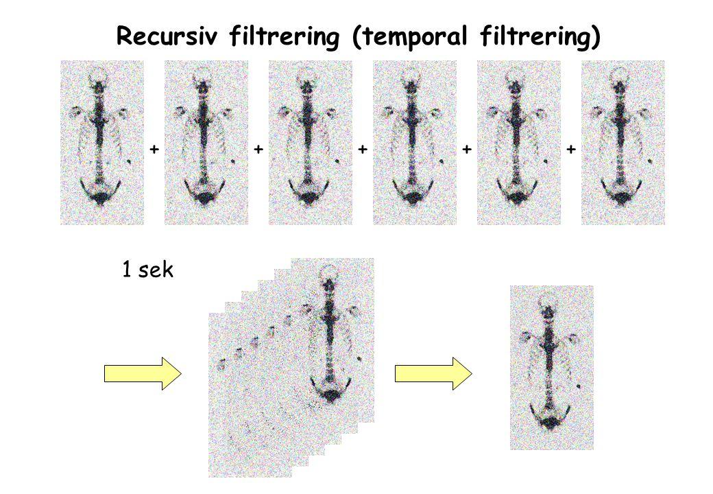 ++ Recursiv filtrering (temporal filtrering) +++ 1 sek
