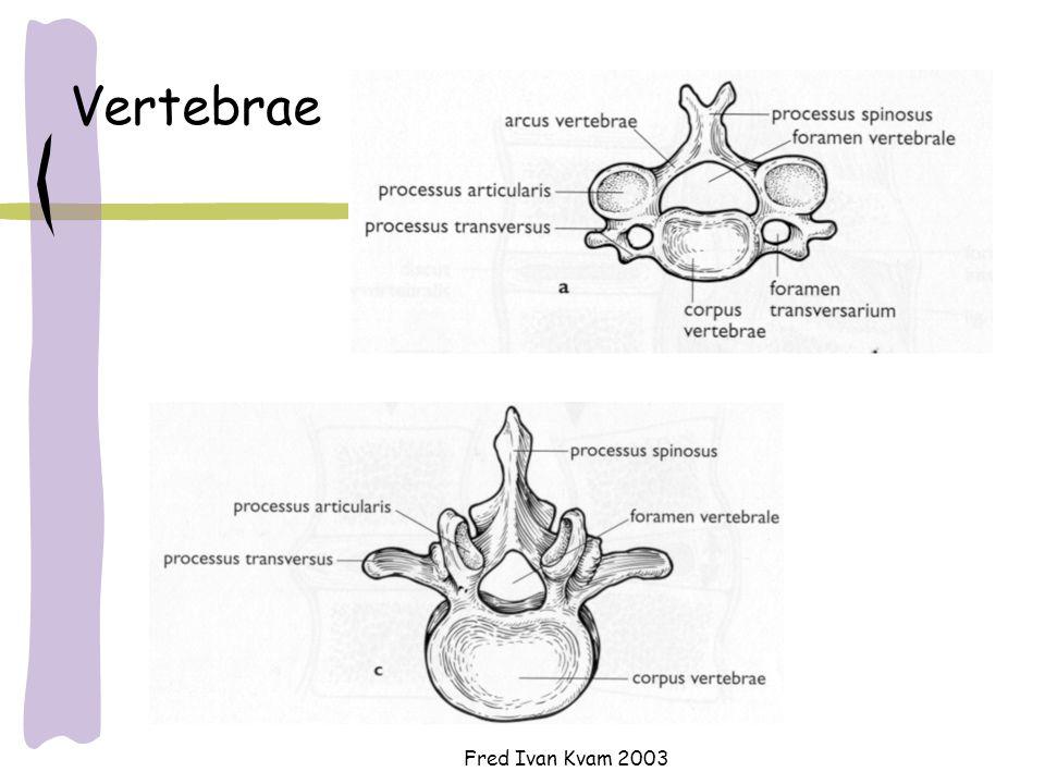 Fred Ivan Kvam 2003 Vertebrae Et skiveprolaps vil kunne klemme mot spinalnerver – eksempelvis deler av ischiasnerven Arcus vertebrae (buen) lamina pediculus Corpus vertebrae