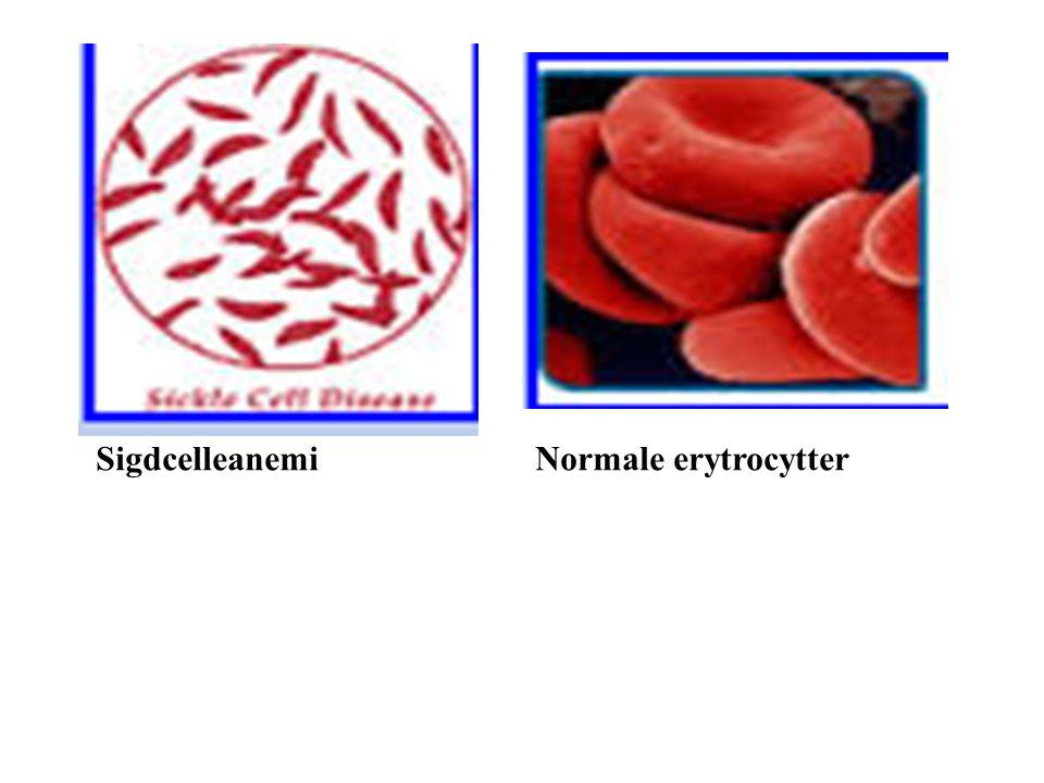 Alder: Unge 60 år mer utsatt for infeksjonssykdommer.