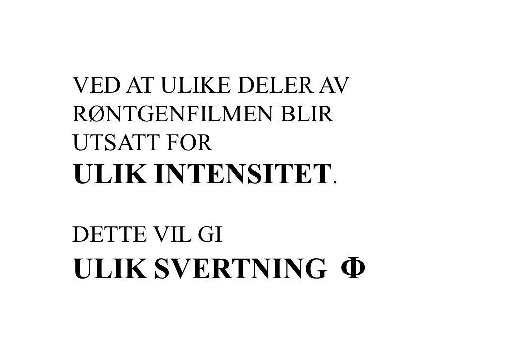 VED AT ULIKE DELER AV RØNTGENFILMEN BLIR UTSATT FOR ULIK INTENSITET. DETTE VIL GI ULIK SVERTNING Φ