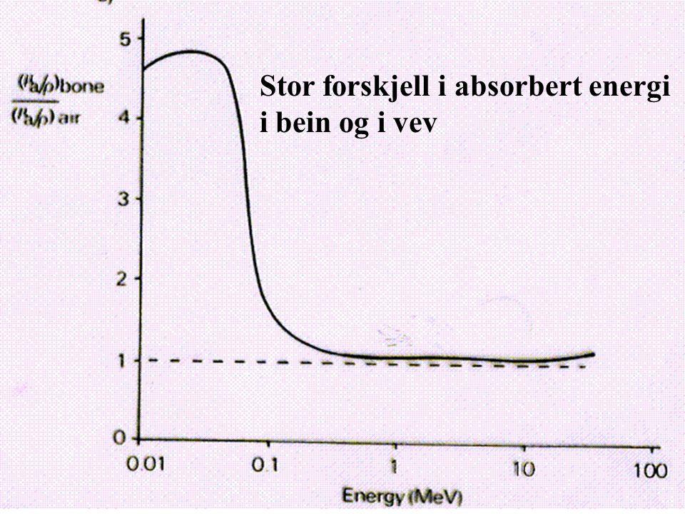 Stor forskjell i absorbert energi i bein og i vev