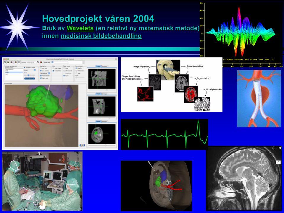 Hovedprojekt våren 2004 Bruk av Wavelets (en relativt ny matematisk metode) innen medisinsk bildebehandling