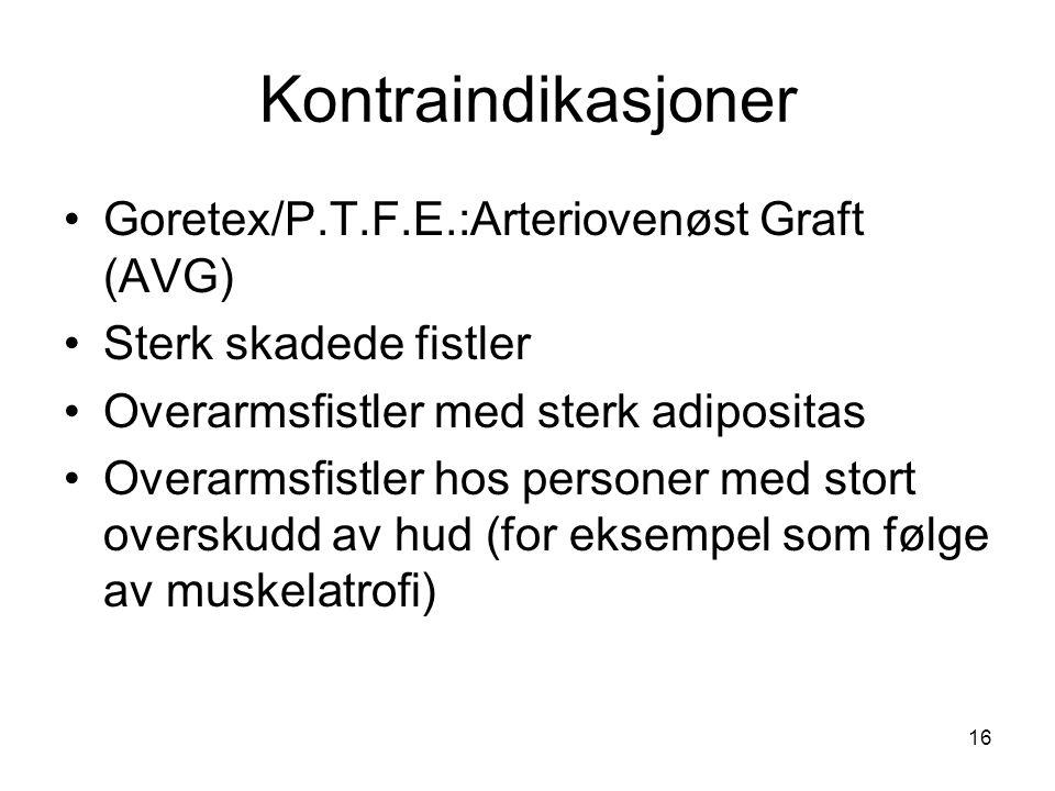 16 Kontraindikasjoner Goretex/P.T.F.E.:Arteriovenøst Graft (AVG) Sterk skadede fistler Overarmsfistler med sterk adipositas Overarmsfistler hos person