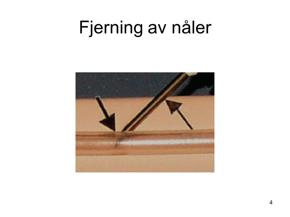4 Fjerning av nåler