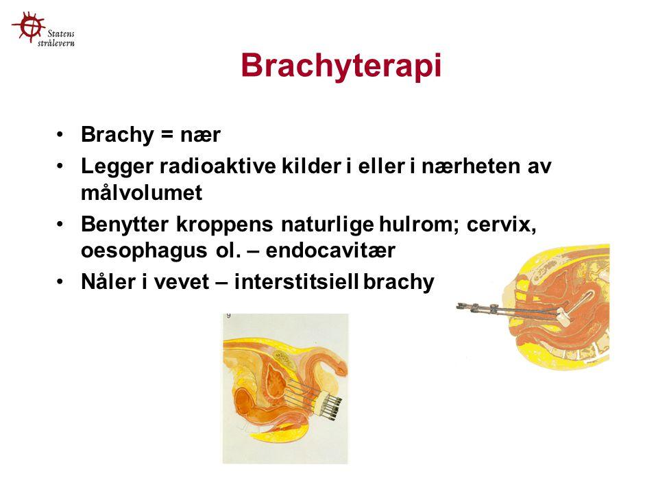 Brachyterapi Brachy = nær Legger radioaktive kilder i eller i nærheten av målvolumet Benytter kroppens naturlige hulrom; cervix, oesophagus ol.