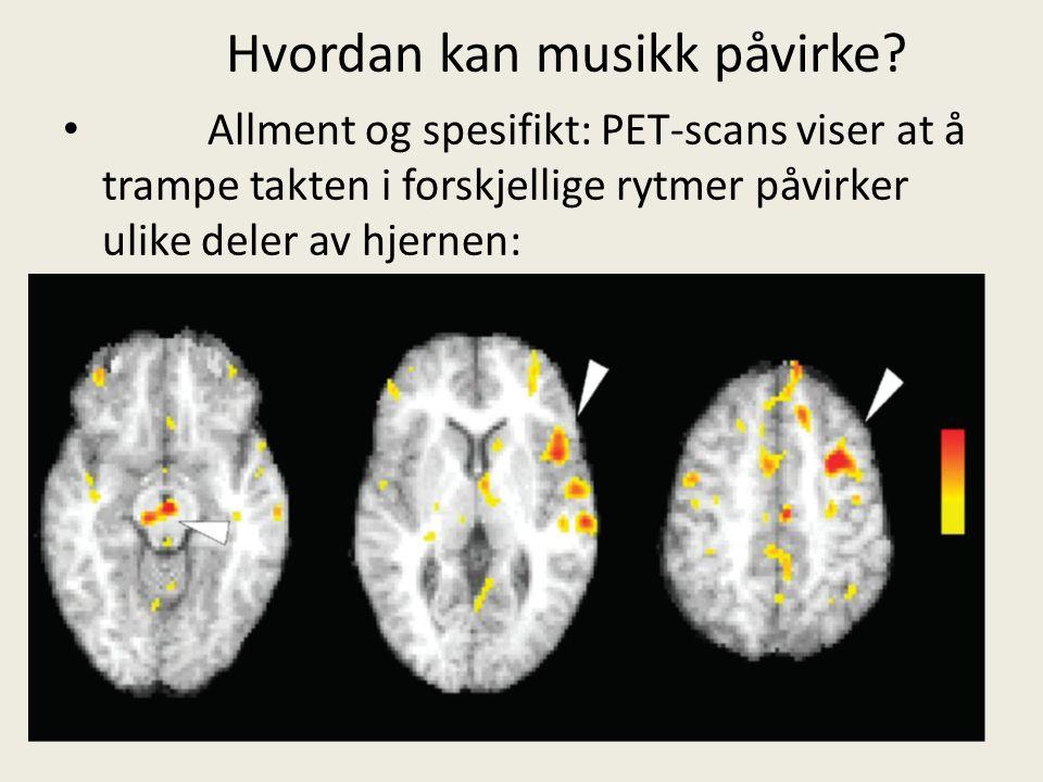 Hvordan kan musikk påvirke? Allment og spesifikt: PET-scans viser at å trampe takten i forskjellige rytmer påvirker ulike deler av hjernen: