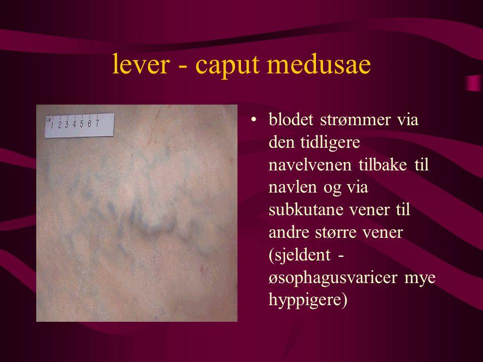 lever - caput medusae blodet strømmer via den tidligere navelvenen tilbake til navlen og via subkutane vener til andre større vener (sjeldent - øsophagusvaricer mye hyppigere)