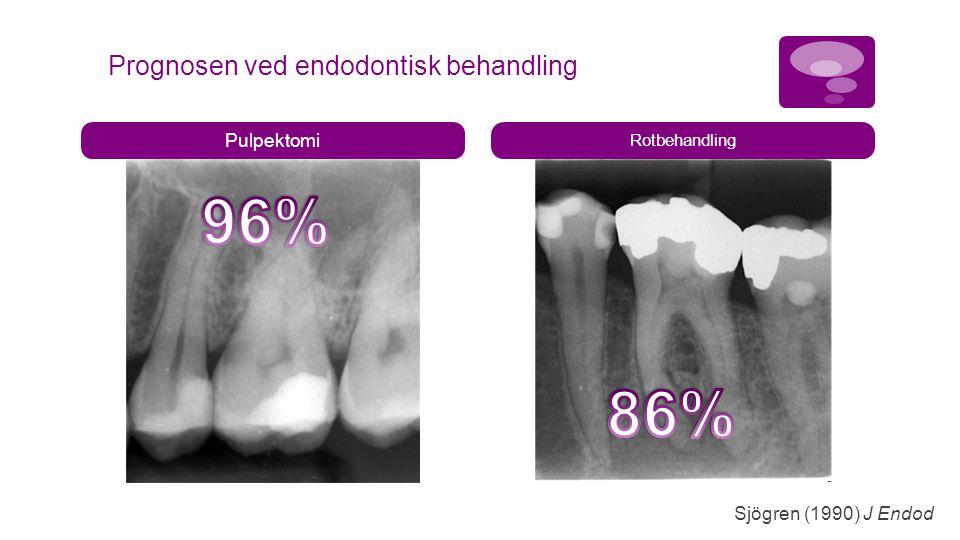 Pulpektomi Rotbehandling Prognosen ved endodontisk behandling Sjögren (1990) J Endod
