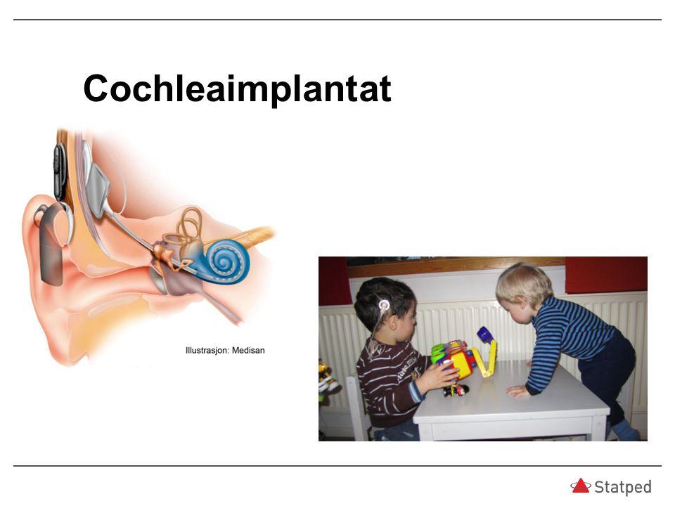 Cochleaimplantat 8