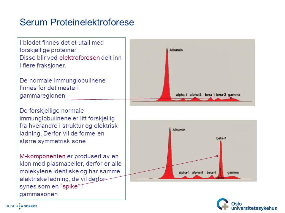 Serum Proteinelektroforese I blodet finnes det et utall med forskjellige proteiner Disse blir ved elektroforesen delt inn i flere fraksjoner. De norma