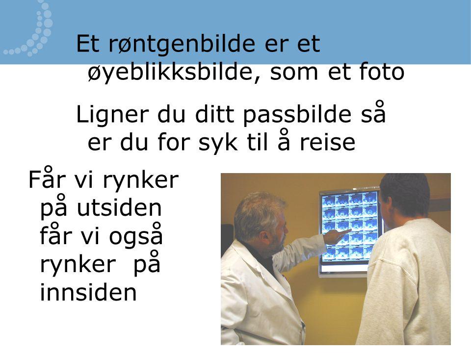 Et røntgenbilde er et øyeblikksbilde, som et foto Ligner du ditt passbilde så er du for syk til å reise Får vi rynker på utsiden får vi også rynker på
