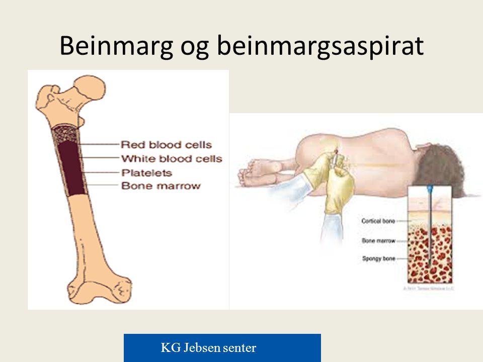 Melfalan/prednison/thal mot melfalan/prednison/len I alt 668 pasienter St Olav, Ullevål, Førde, Stavanger, Ullevål, Tromsø Analysert juli 2014