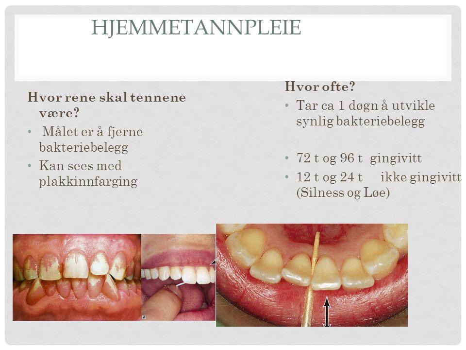 HJEMMETANNPLEIE Hvor rene skal tennene være? Målet er å fjerne bakteriebelegg Kan sees med plakkinnfarging Hvor ofte? Tar ca 1 døgn å utvikle synlig b