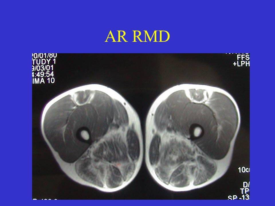 AR RMD