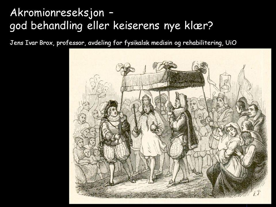 Akromionreseksjon – god behandling eller keiserens nye klær? Jens Ivar Brox, professor, avdeling for fysikalsk medisin og rehabilitering, UiO