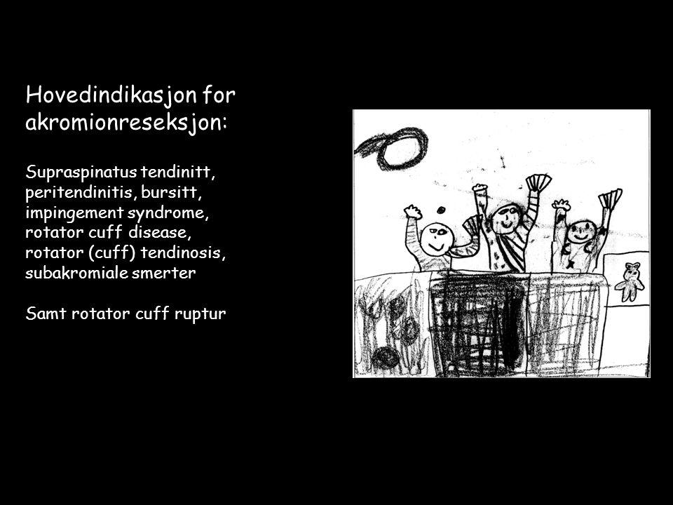 Hovedindikasjon for akromionreseksjon: Supraspinatus tendinitt, peritendinitis, bursitt, impingement syndrome, rotator cuff disease, rotator (cuff) tendinosis, subakromiale smerter Samt rotator cuff ruptur